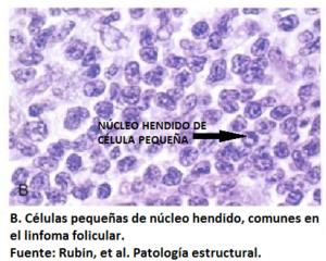 Linforma folicular
